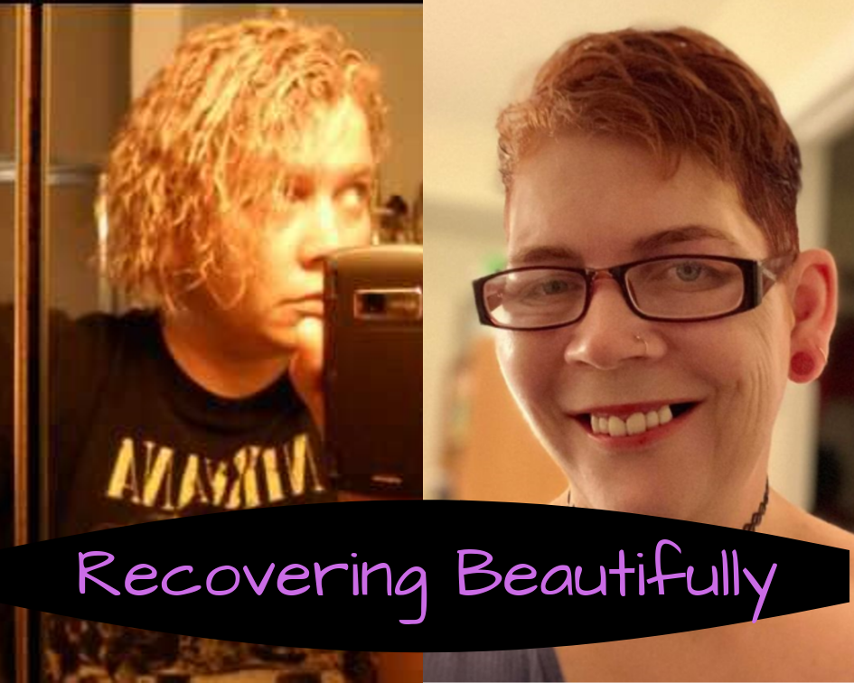 Hollie's Story – Recovering Beautifully