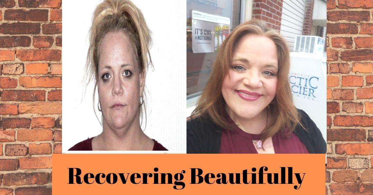 Jennifer's Story-Recovering Beautifully.