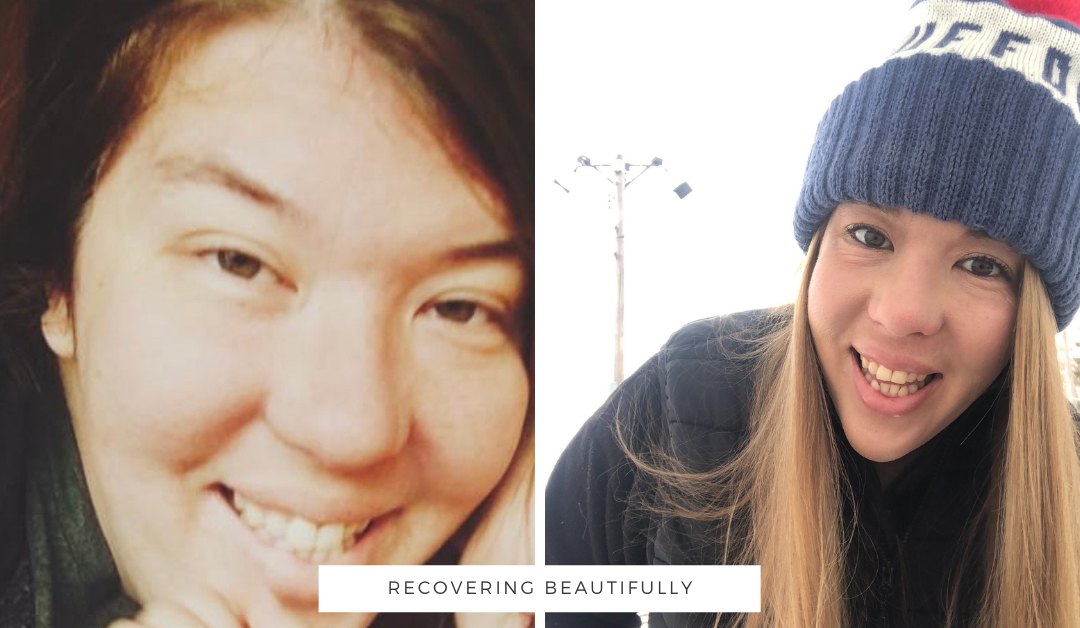 Mallory's Story – Recovering Beautifully