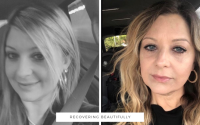 Jennifer's Story – Recovering Beautifully