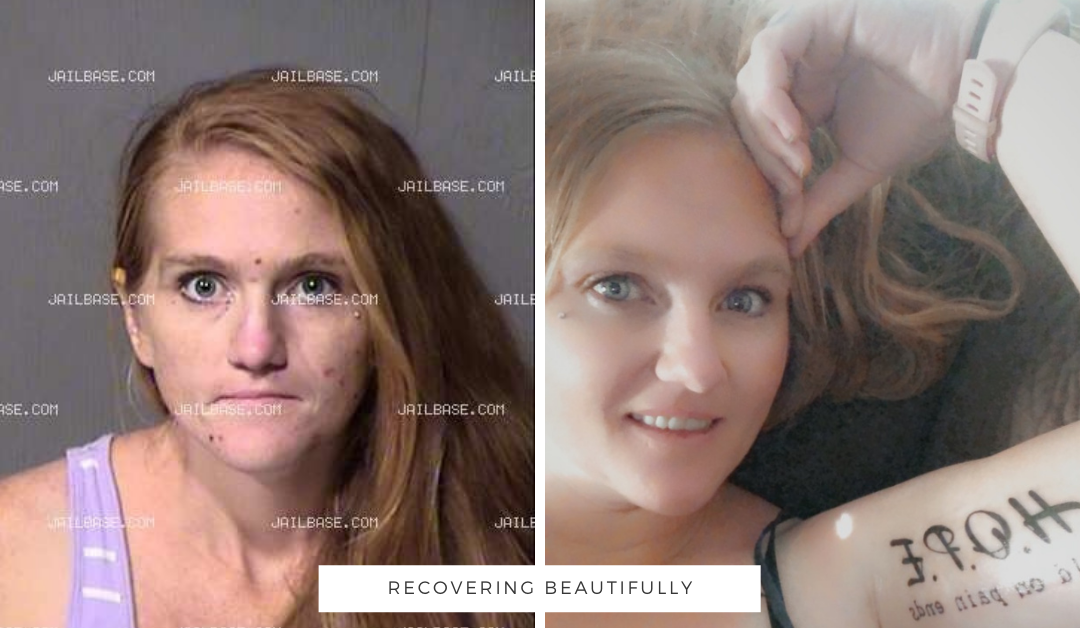 Nicole's Story – Recovering Beautifully