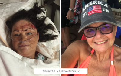 Terri's Story – Recovering Beautifully