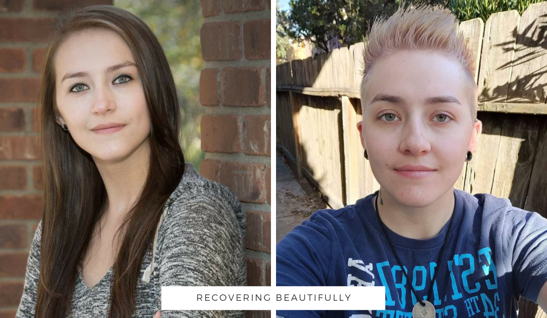Alexis's Story – Recovering Beautifully