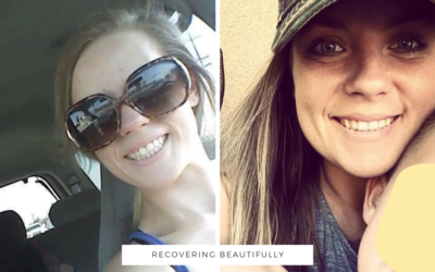 Caitlin's Story – Recovering Beautifully