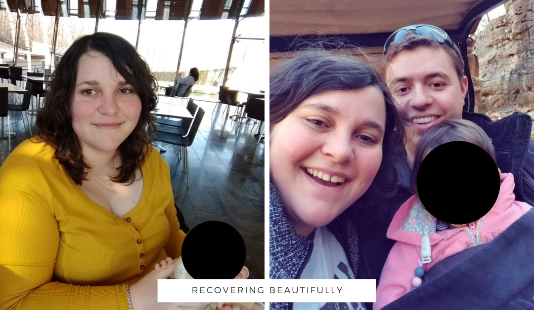Natalie's Story – Recovering Beautifully