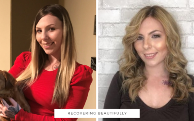 Kaitlin's Story – Recovering Beautifully