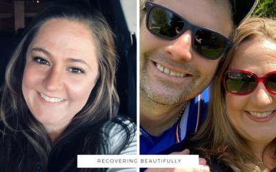 Vanessa's Story – Recovering Beautifully