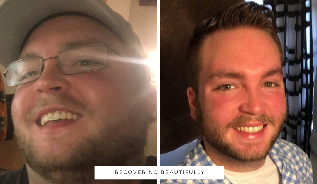 Anthony's Story – Recovering Beautifully