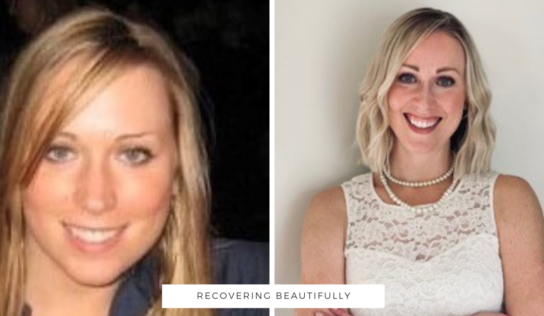 Julie's Story – Recovering Beautifully