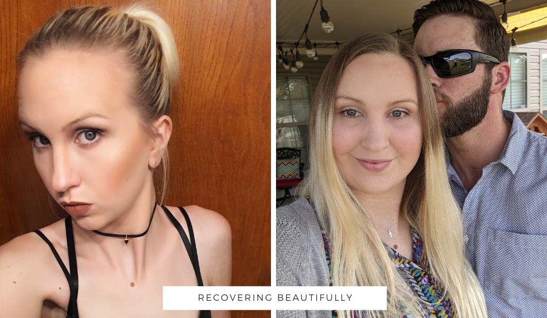 Katrina's Story – Recovering Beautifully